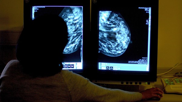 Scientists identify potential risk factors for aggressive form of breast cancer 2